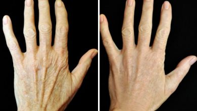 Five Ways Hands Making Look Older How to Fix
